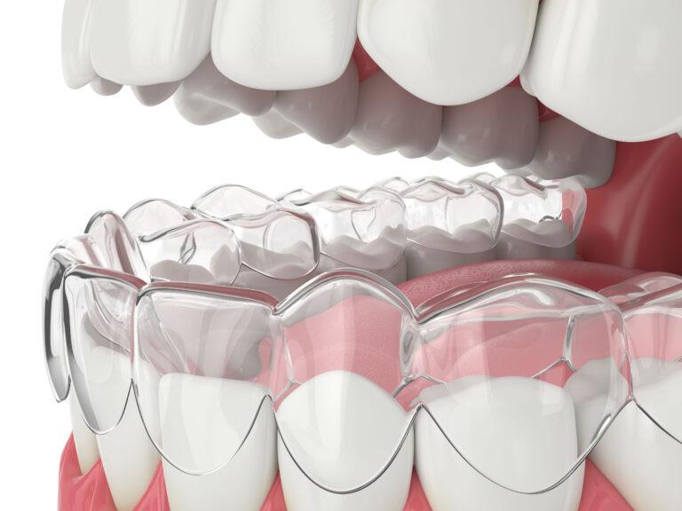 Dental Clear Aligner